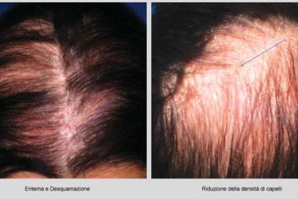 psoriasi e capelli