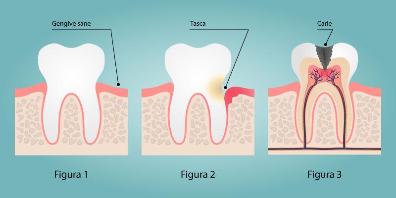 malattie dentali e paradontali
